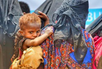 Yemen: Covid-19 & Mass Starvation